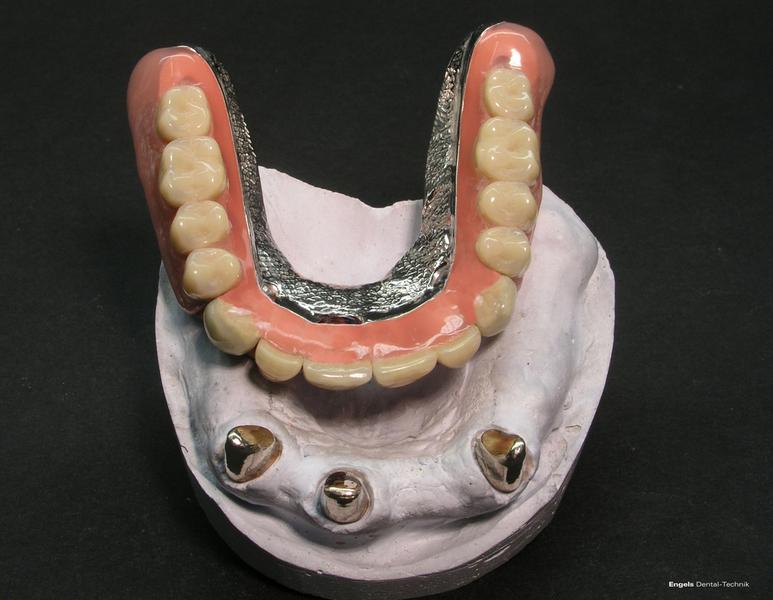 Teleskop dental : Ias technik kombinationsprothetik kombi prothese